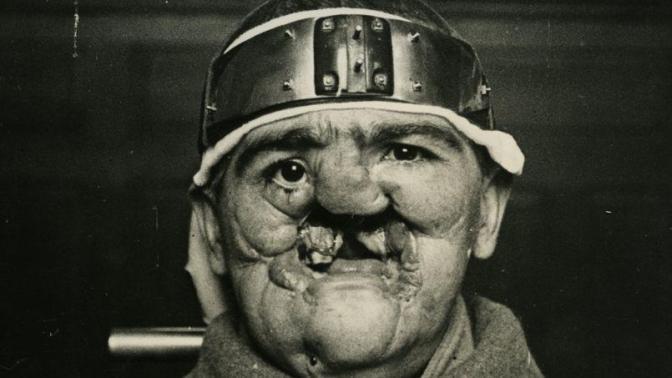 955/15 mars 1917: Hippolyte Morestin, le médecin des gueules cassées
