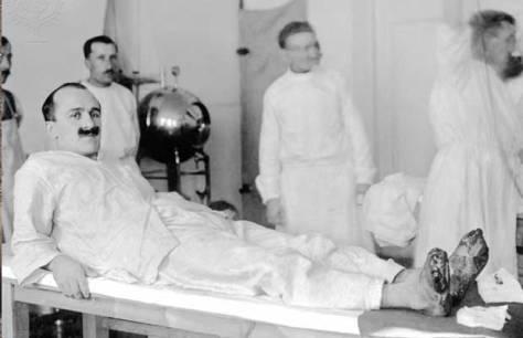 1214/29 novembre 1917: à propos des blessures aux pieds dans les tranchées